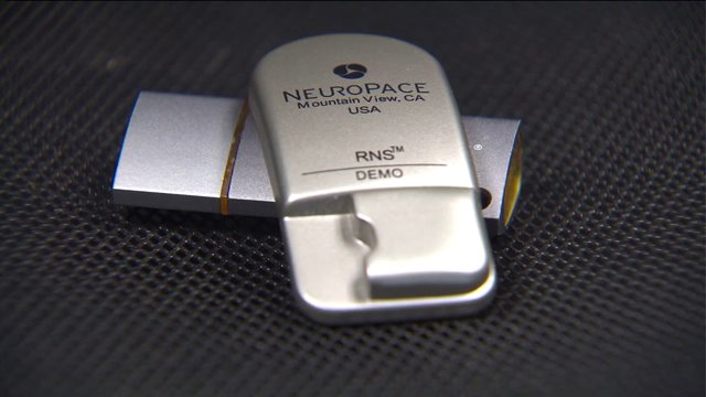 Newly approved device can stop a seizure in its tracks