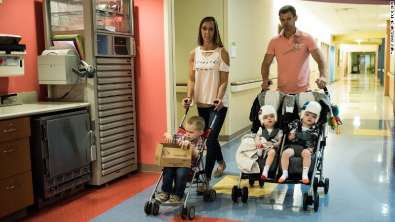 Formerly Conjoined Twins Finally Return Home Wgn Tv
